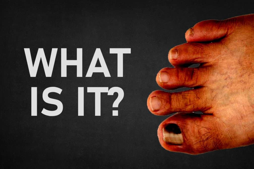 Hongo negro en las uñas de los pies |  Uñas negras |  Tratamientos  Causas