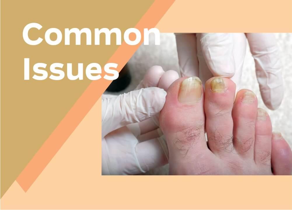 Problemas con las uñas de los pies    Problemas en las uñas de los pies ~ Causas    Síntomas